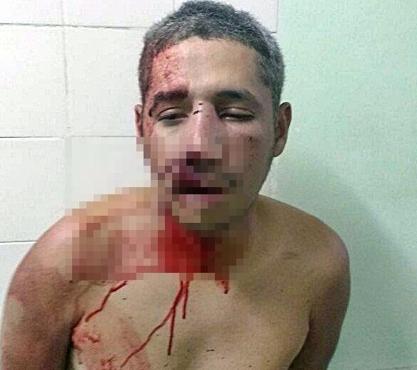 Homem é espancado por populares após matar cadela a facadas