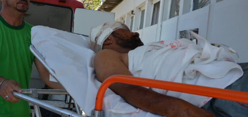 Homem é brutalmente espancado no Piauí