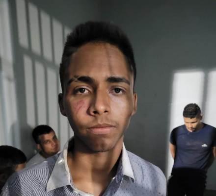 Assaltante que roubou arma de Delegado de Timon é solto na Audiência de Custódia