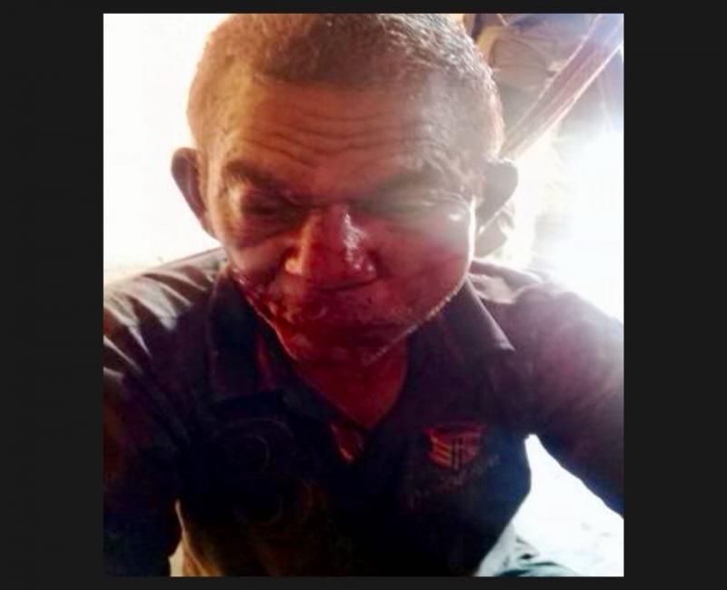Idoso é agredido a pedradas por assaltante no interior Piauí