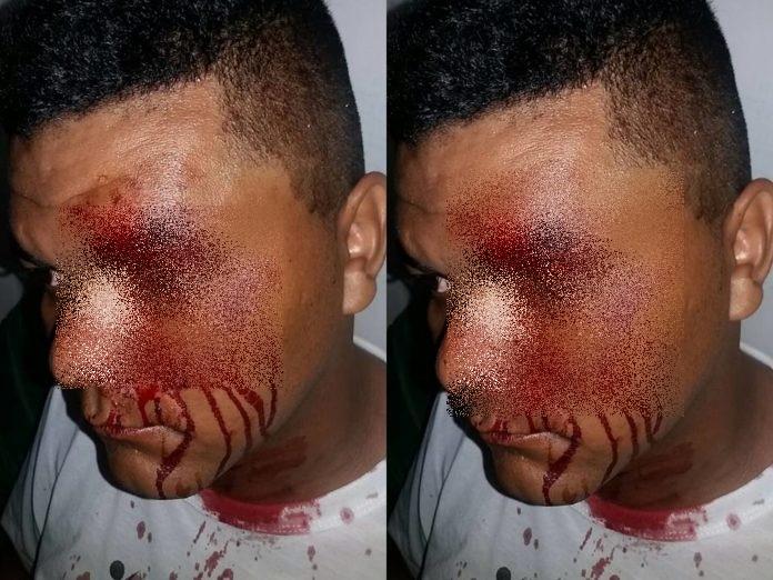 Radialista Ananias Araújo sofre tentativa de homicídio em Cabeceiras
