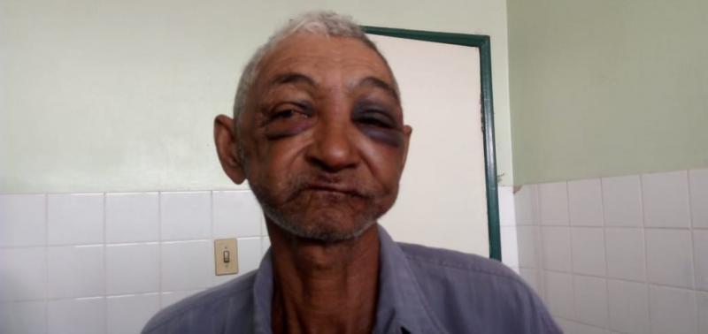 Idoso é espancado a pauladas pelo próprio neto no Piauí
