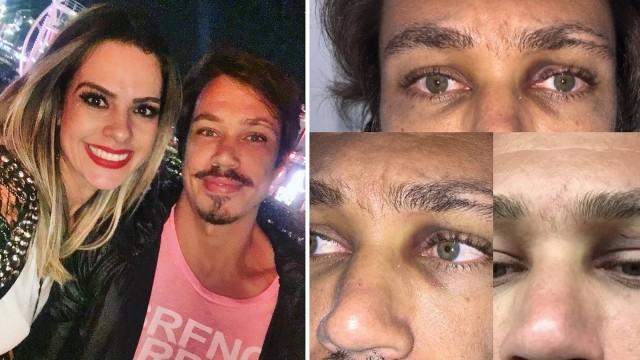 Atriz e maquiador relatam agressões em Jericoacoara: 'momentos de terror'