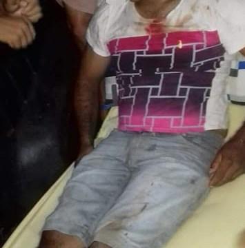 Santa Quitéria - MA: Assaltantes tomam motocicleta e ainda quebraram a perna da vítima a pauladas