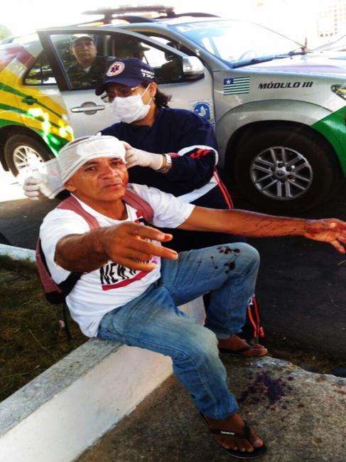Flanelinha é agredido com pauladas na cabeça no Piauí